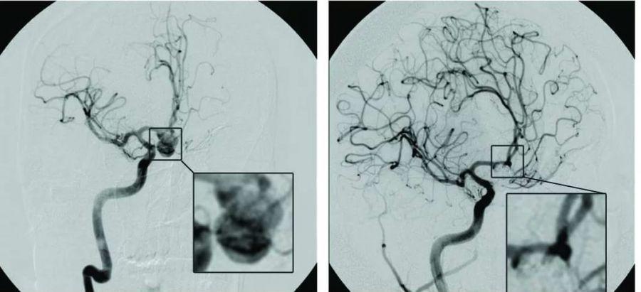 Деформация артерий головного мозга и аневризма
