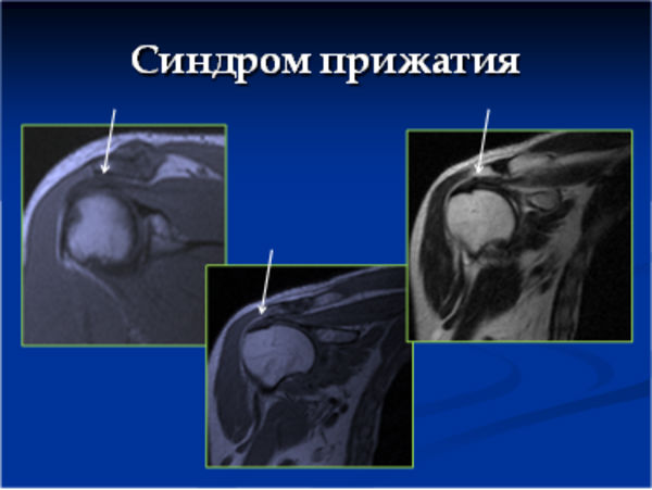 Синдром прижатия плеча