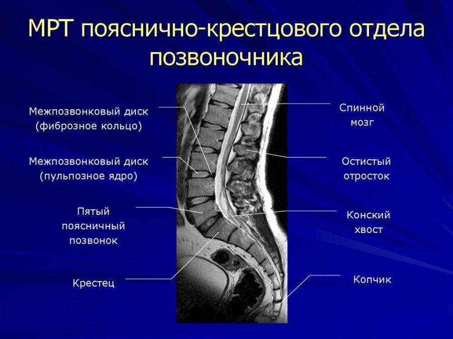 МРТ пояснично-крестцового отдела