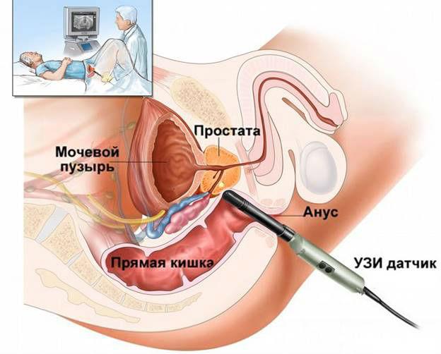 Трансректальный метод УЗИ