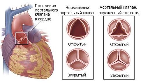 Состояние аортального клапана