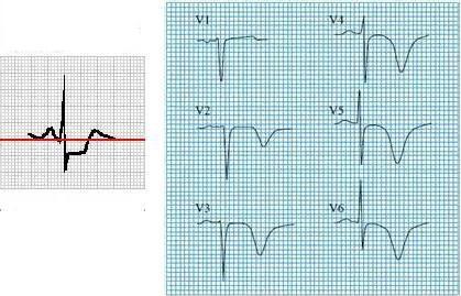 ЭКГ при нестабильной стенокардии