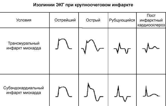 Крупноочаговый инфаркт