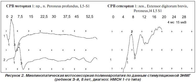 ЭНМГ при миелинопатической мотосенсорной полиневропатии у ребенка