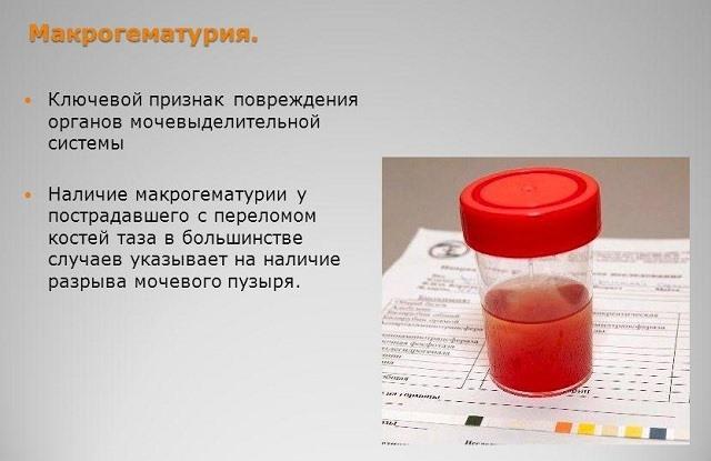 Макрогематурия