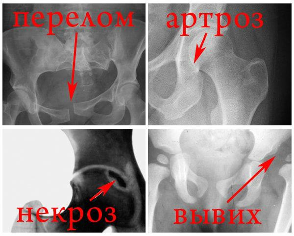Патологии ТБС на рентгене