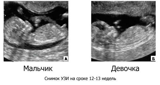 Пол ребенка на 12 неделе