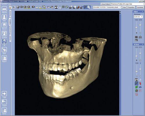 3D-изображение челюсти