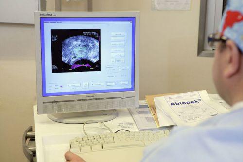 Визуализация органов на экране монитора