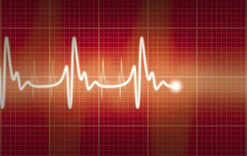 Запись кардиограммы