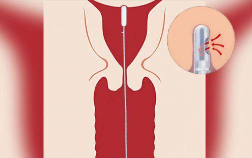 Пайпель-биопсия