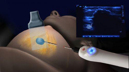 Биопсия молочной железы