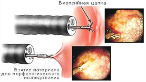 Биопсия при ФГДС