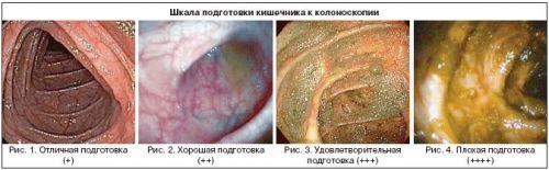 Подготовка кишечника к колоноскопии