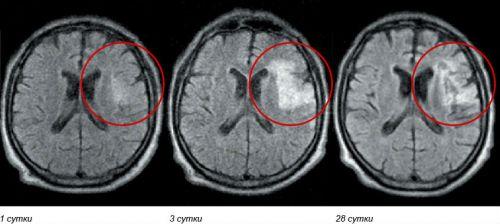 Инсульт на МРТ