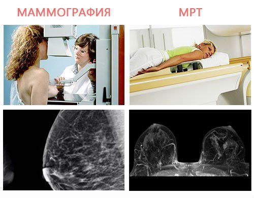 Маммография и КТ