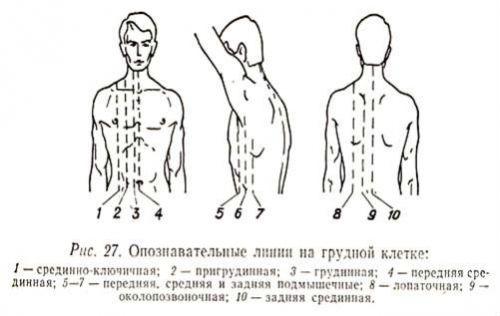 Опознавательные линии на грудной клетке