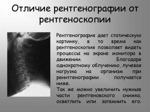 Отличие рентгена легких от ФГ