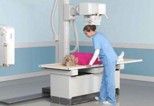 Рентгенография желудка
