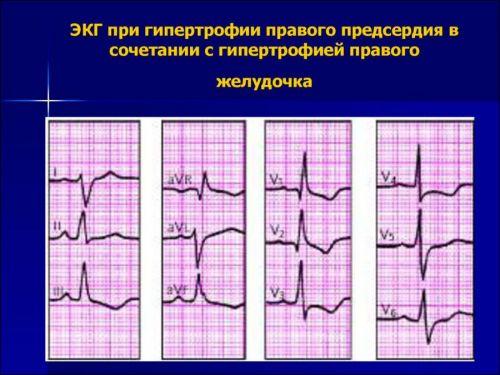 Гипертрофия сердца на ЭКГ