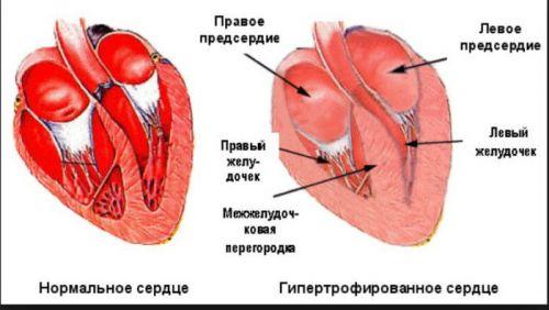 Гипертрофированное сердце