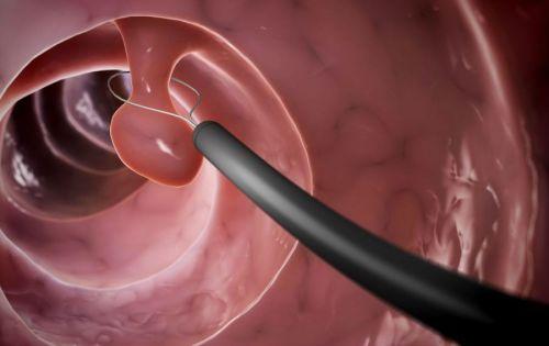 Удаление полипа эндоскопом