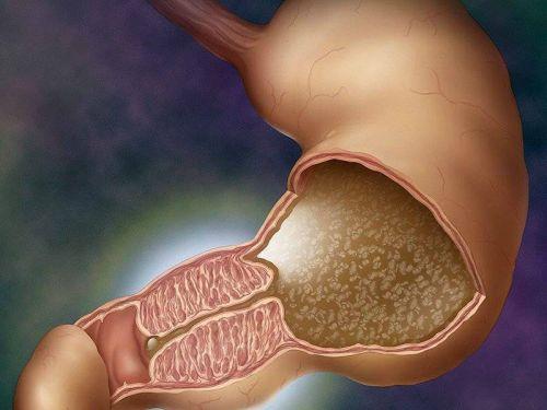 Стеноз кишечника