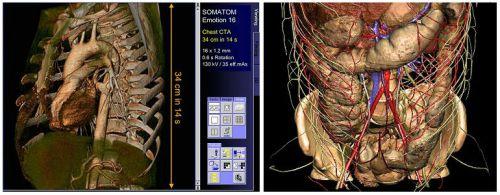 КТ органов с контрастом