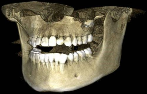 3D  изображение челюсти