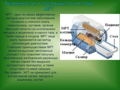 Возможности и преимущества МРТ