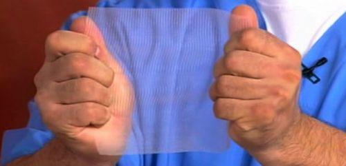 Сетка для операции при грыже