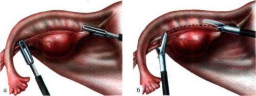 Лапароскопия при СПКЯ