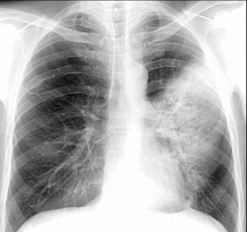 Линейная томография легких