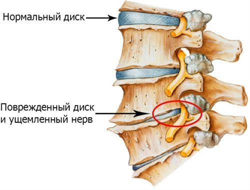 Ущемление нервов позвоночника