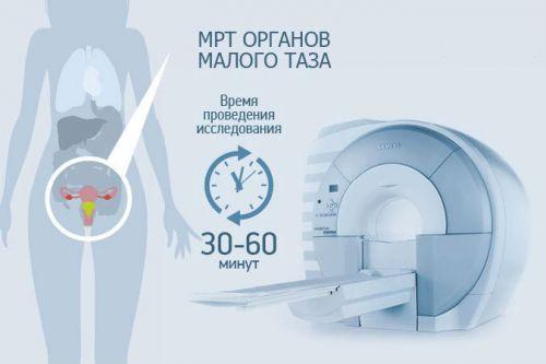 Время проведения МРТ малого таза