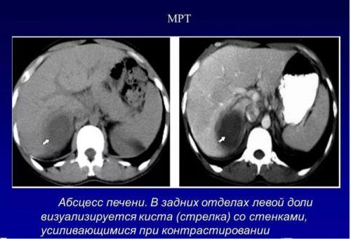 Абсцесс печени на МРТ