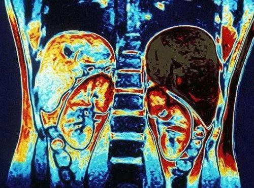 МРТ почек и надпочечников с контрастом