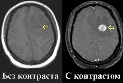 МРТ головы с контрастом