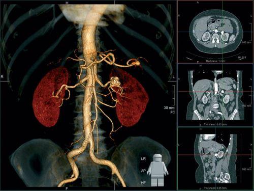 МРТ почек с контрастом