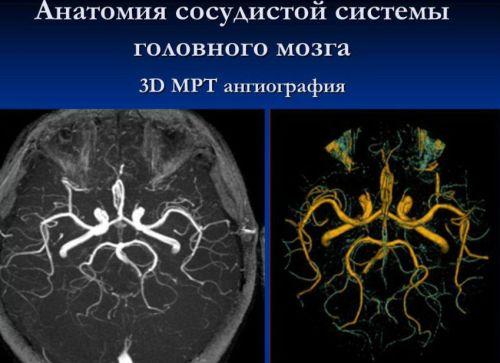 Строение сосудов головного мозга