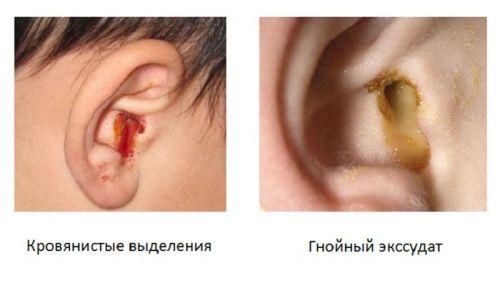 Патологические выделения из ушей