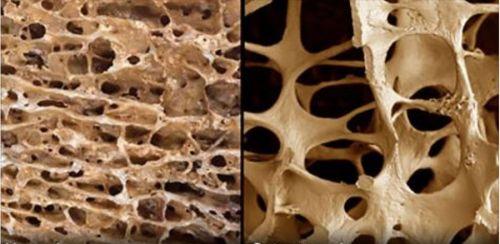 Низкая плотность костей