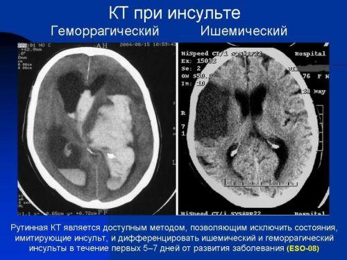 КТ при инсульте
