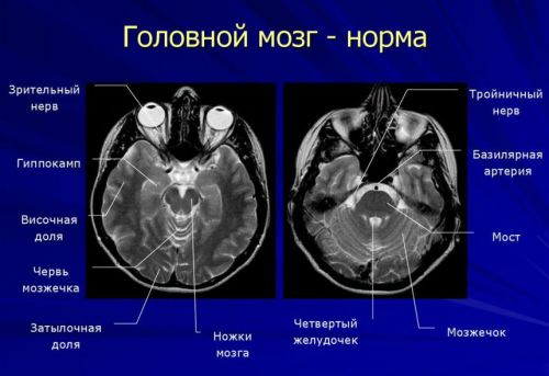 Норма головного мозга на МРТ