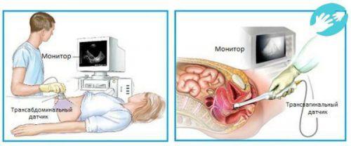 Виды УЗИ при беременности