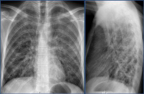 Красное опеченение при пневмонии на рентгене