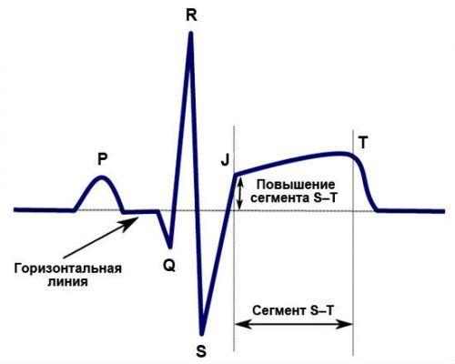 Повышение сегмента S-T на ЭКГ