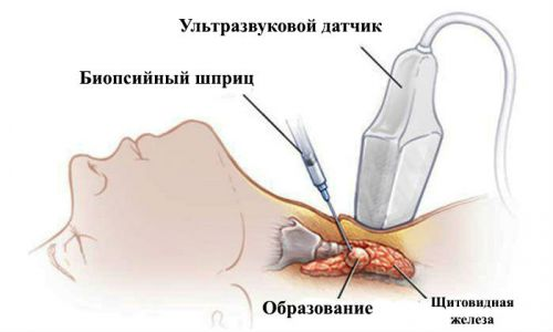 Пункция щитовидки