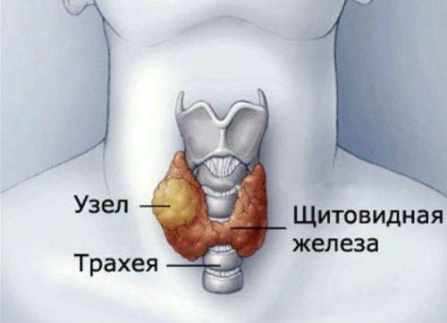 Узлы щитовидки
