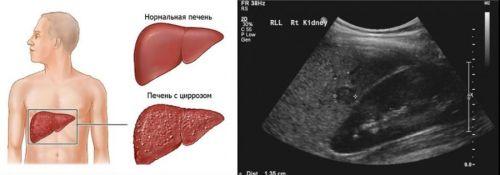 Цирроз печени на УЗИ